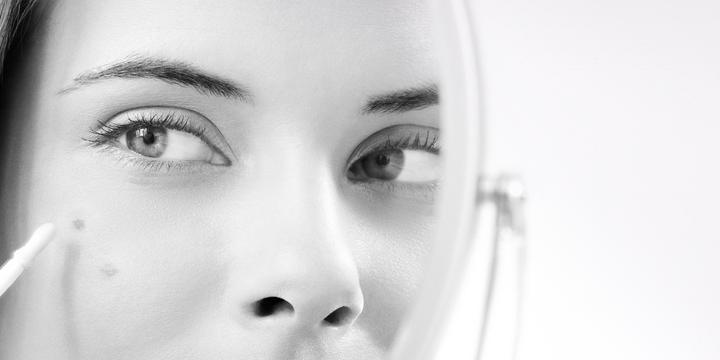 Chứng tăng sắc tố - nguyên nhân gây nên làn da sạm màu