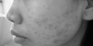 Những nguyên tắc chăm sóc da mụn