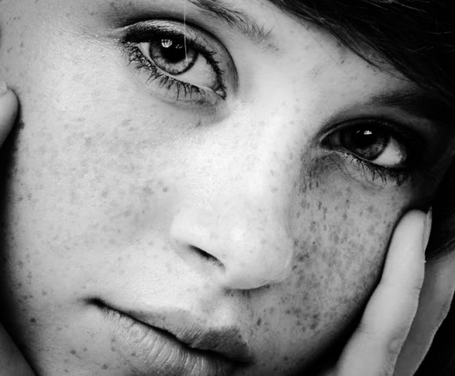Tìm hiểu về nám da di truyền và hướng điều trị