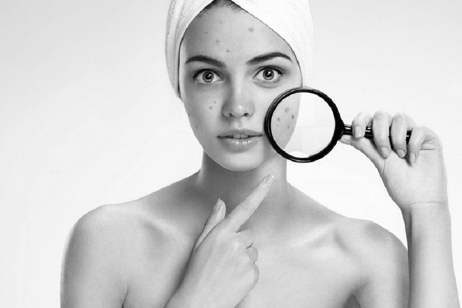 Thải độc tố trị mụn cho da