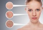 Các loại nám da và cách điều trị hiệu quả